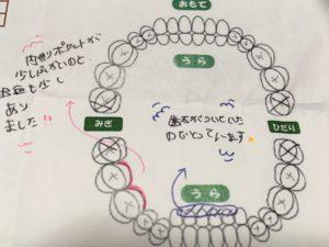 歯の診断結果