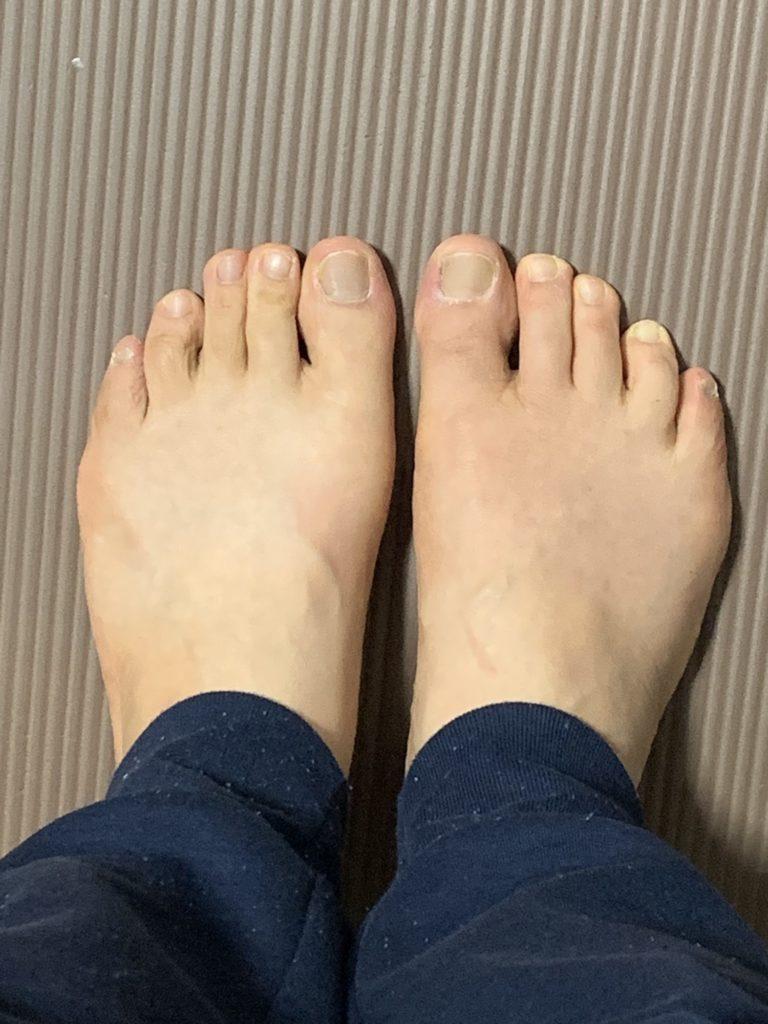 現在の足の形